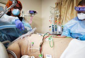 Murieron 191 personas y 7.432 fueron diagnosticadas con coronavirus en el país