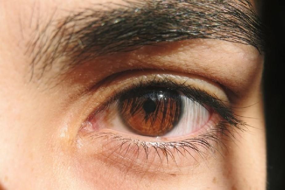 Se realizó el primer operativo doble de donación de tejido corneal en Río Negro
